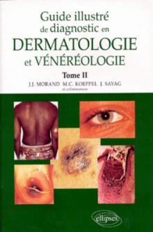 Guide illustré de diagnostic en dermatologie et vénéréologie - Tome 2